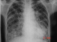 Image of CXR cancer