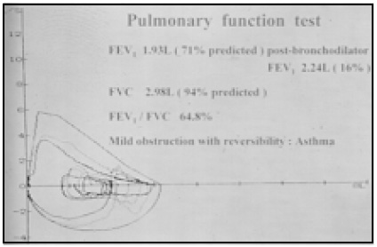 Image of Pulmonary Function Test
